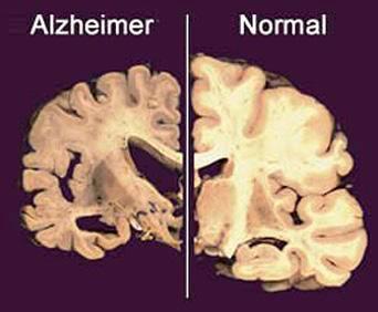 (Fig.15.) En aquesta imatge es pot comparar entre un cervell deteriorat per l'alzheimer i un altre en bon estat