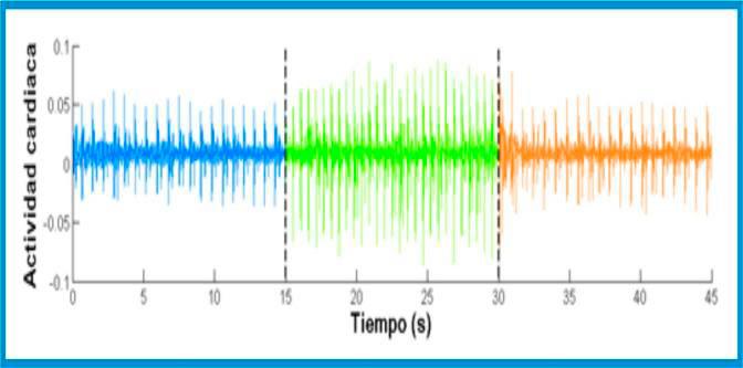 (Fig.22.) En el gràfic adjunt, es constata l'increment de l'activitat cardíaca mentre dura la partida.